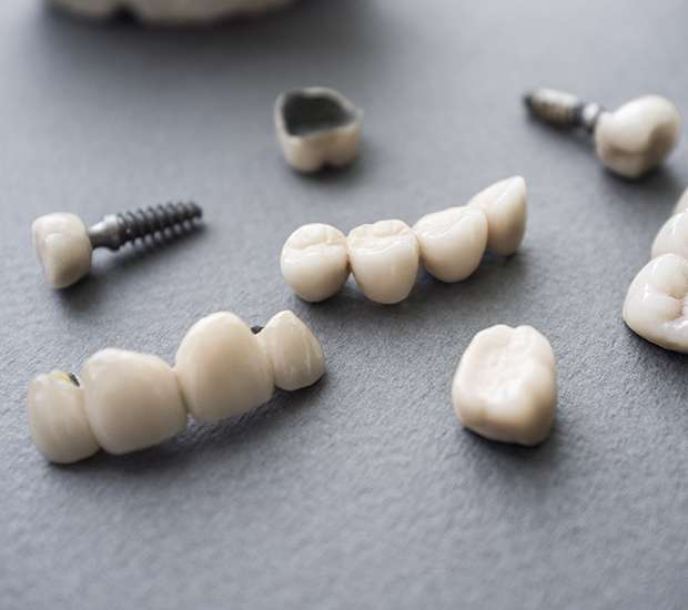 Dallas The Difference Between Dental Implants and Mini Dental Implants